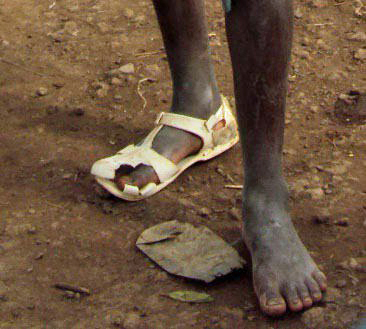 Boy wearing one shoe, Ethiopia